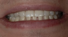 Brent implant crown in ortho done