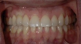 Brent implant crown just placed
